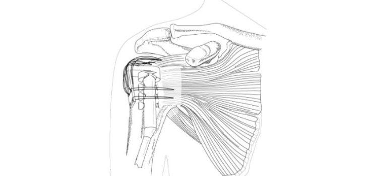 Rottat cuff - orthopaedic implant