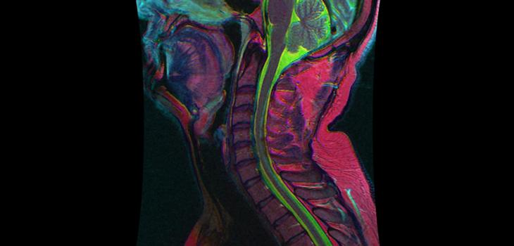 cervical I Orthoppedic Implant blog
