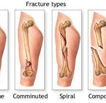 Different Types of fracture - Oblique,Comminuted, Spiral, Compound