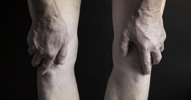 Sarcopenia's Role in Knee OA Progression
