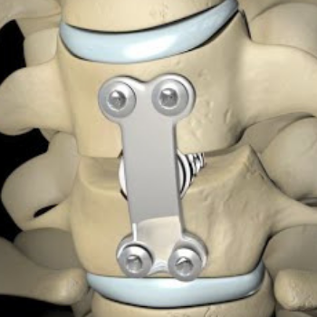 Anterior cervical discectomy and fusion(ACDF)