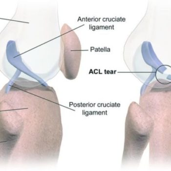 Type of Knee Ligament Injuries