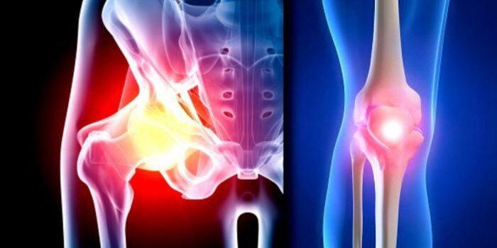 Deep irrigation and debridement in total hip and knee arthroplasty