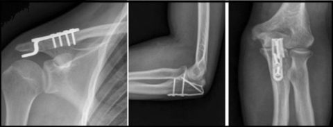 Fracture of joints I Orthopedic Implant