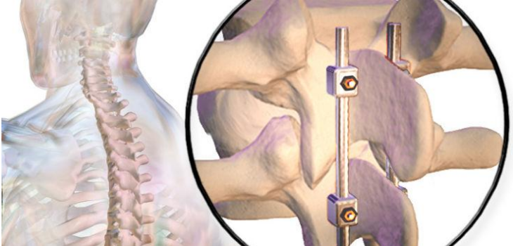 Postoperative Care for Spinal Fusion Surgery